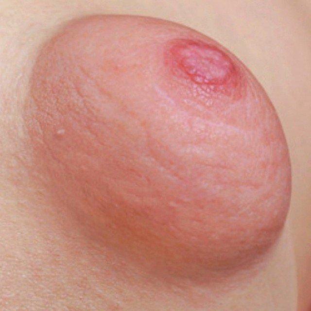 Puffy Tits