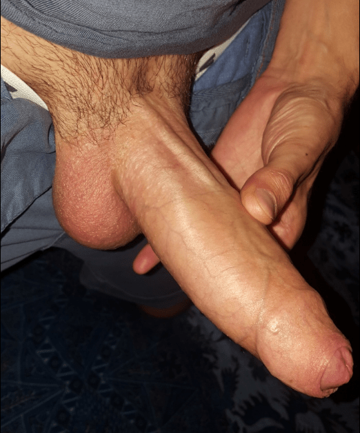 Photo in topic uncut cock by queerfever